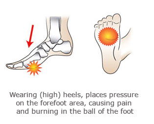 pressure in the ball of the foot